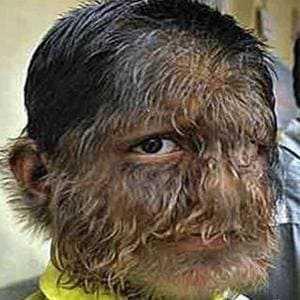 Заболевание, вызывающие рост волос